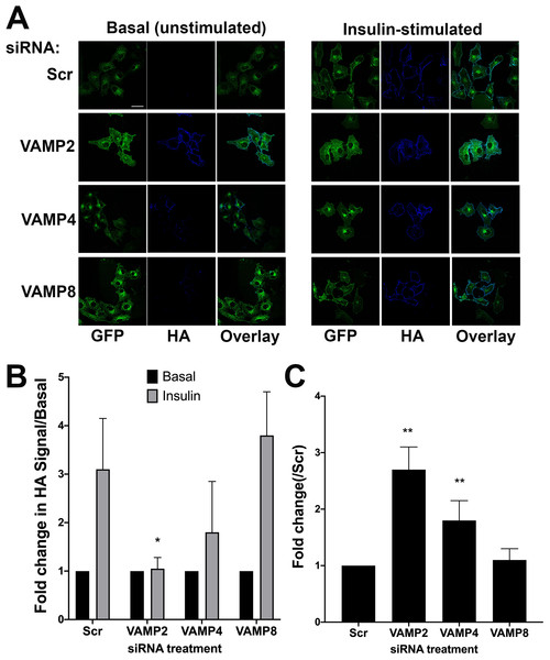 The effect of knockdown of VAMP isoforms on HA–GLUT4–GFP translocation.