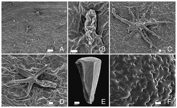 SEM images of trichomes and seeds of Miconia lucenae.
