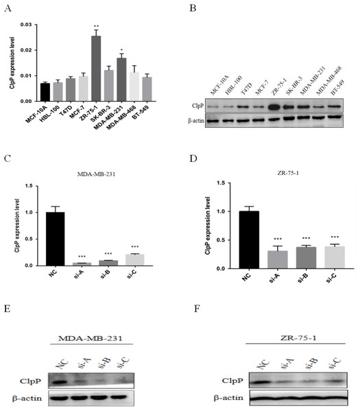 ClpP mRNA and protein expression in a panel of BC and normal breast epithelial cell lines.