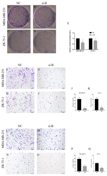 Silencing of ClpP-B inhibits proliferation, migration and invasion of BC cells.