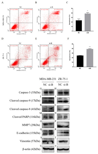 Silencing of ClpP-B induces apoptosis of BC cells.