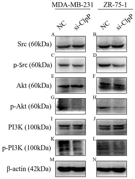 Silencing ClpP inhibits Src/PI3K/Akt signaling in MDA-MB-231 and ZR-75-1 cells.