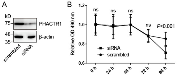 PHACTR1 silence reduces the cell survival of HCAEC cells.