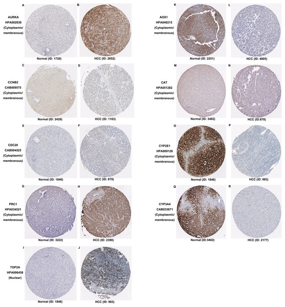 Expression and protein distribution of key genes in normal and HCC tissue measured by immunohistochemistry in the HPA database.