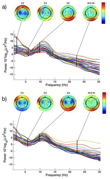 EEG spectral power for a representative subject.