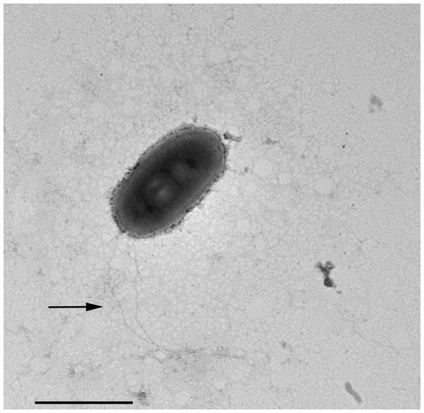 "Negative contrast at TEM of a specimen of ""Ca. Trichorickettsia mobilis""."