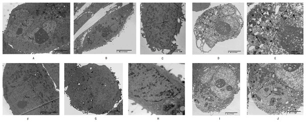 Morphological observation of SW1990 cells by transmission electron microscopy after treatment with Hellebrigenin.