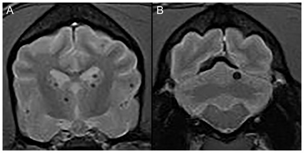 Typical examples of microhemorrhages on T2* weighted images.
