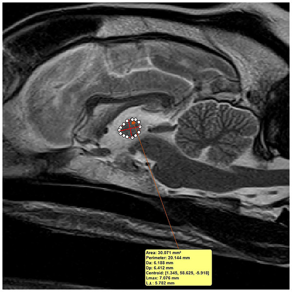 Method of measuring interthalamic adhesion area from a mid-sagittal T2 weighted image.