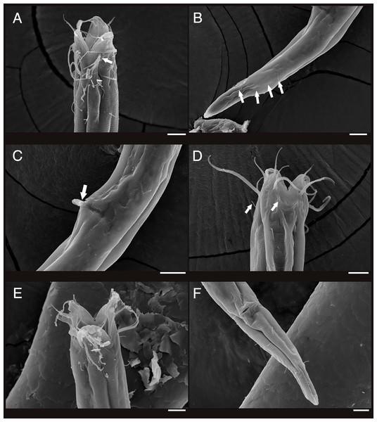 Scanning electron micrograph of Enoploides koreanus sp. nov.