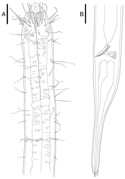 Epacanthion hirsutumShi & Xu, 2016. male.