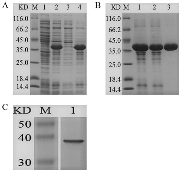 SDS-PAGE and Western blotting analysis of the purified recombinant YgjD.