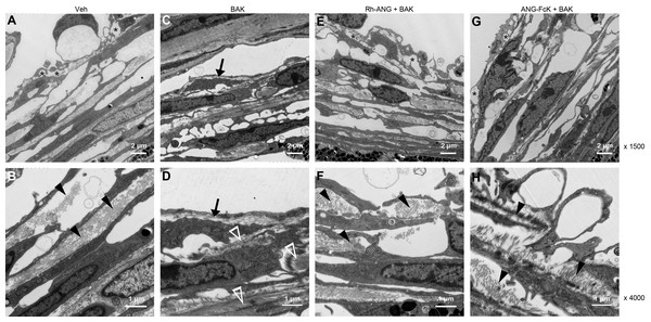 Ultrastructural changes in the TM of mice treated with the combination of BAK and ANG for 4 weeks.