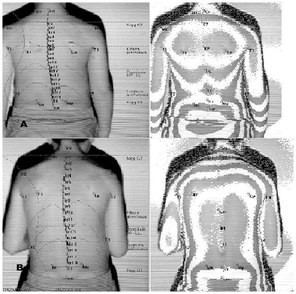 Body posture examination using the photogrammetric method in habitual posture (A) and in the ready position (B).