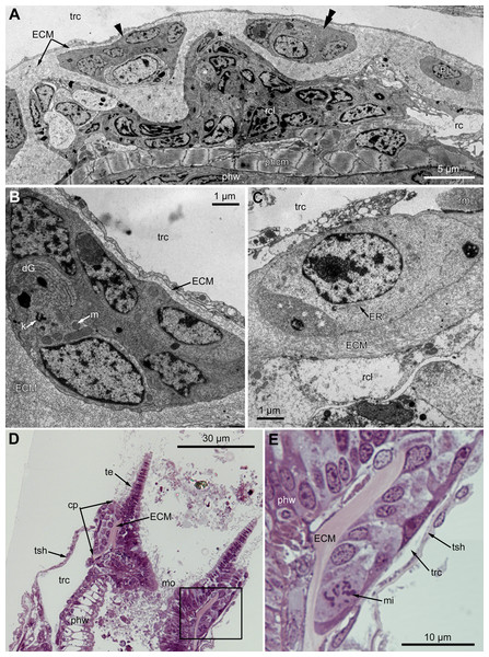 Microanatomy of the proximal region of the ciliated pits in the poypides of the 3rd age class: (A and B), Aquiloniella scabra; (C–E), Rhamhostomella ovata.
