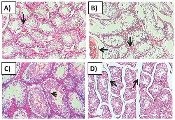Effects of amygdalin on the histology of the testicular tissue of mice.