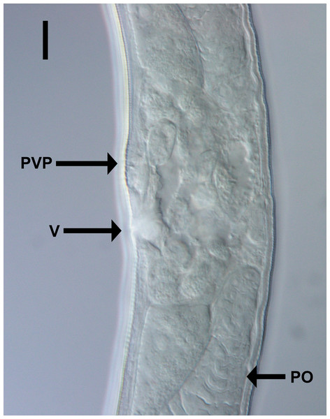 Light micrograph of Chromadorina tangaroa sp. nov.