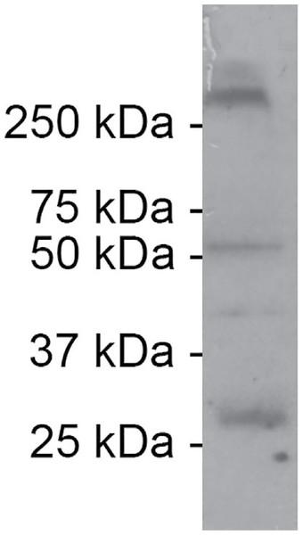 Example of explicit antibody validation.