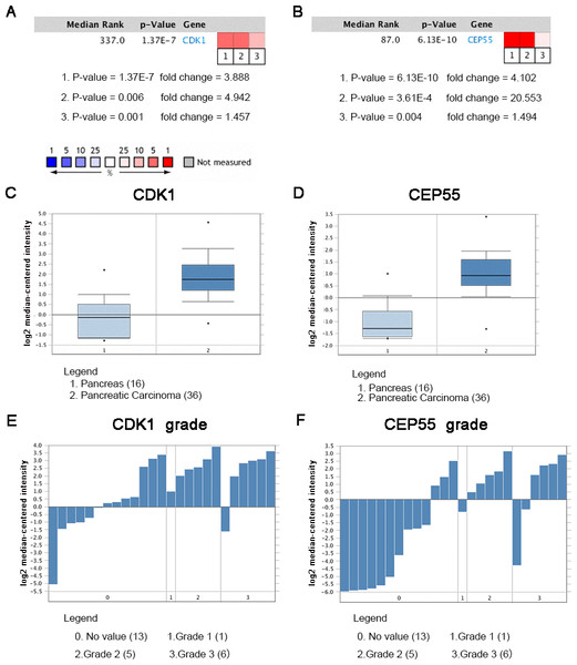 Oncomine analysis of CDK1 and CEP55 in cancer vs. normal tissue.