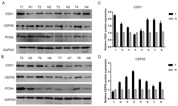 The expression of CDK1 and CEP55 in clinical specimens.