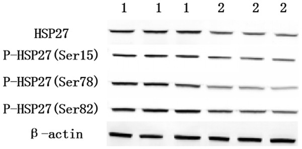 The relative expression of HSP27 and its phosphorylation in normal and lesion groups (1 is normalgroup, 2 is lesion group).