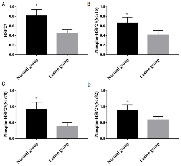 Differences in protein expression of a single indicators between normal and lesion groups.