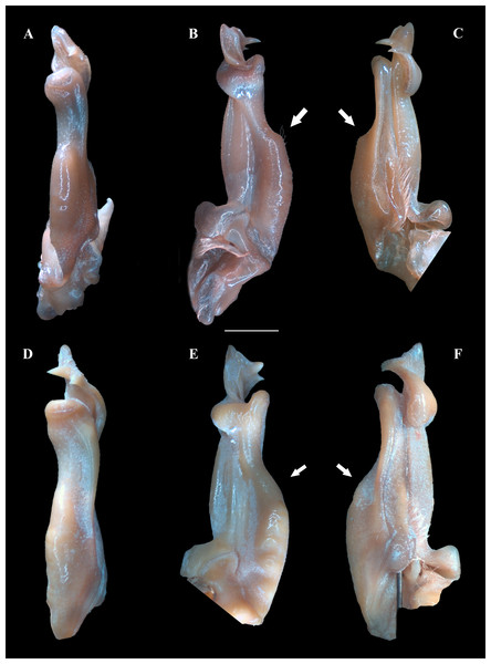 (A–F) Right male first gonopod (G1) in pleonal (tilted left), lateral and mesial views from A–C and D–F, respectively.