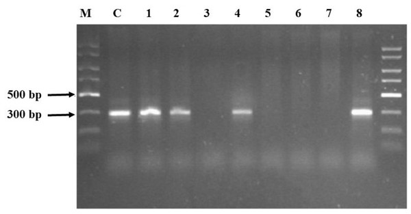 Agarose electrophoresis products obtained using the GeneMATRIX Soil DNA Purification Kit from EURx.