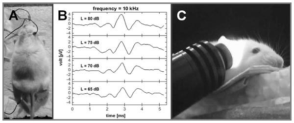 Auditory brainstem recordings.