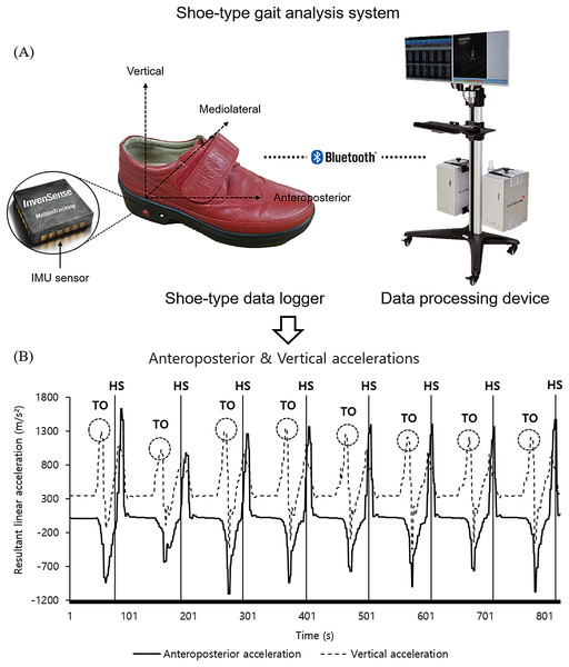 A shoe-type gait analysis system.