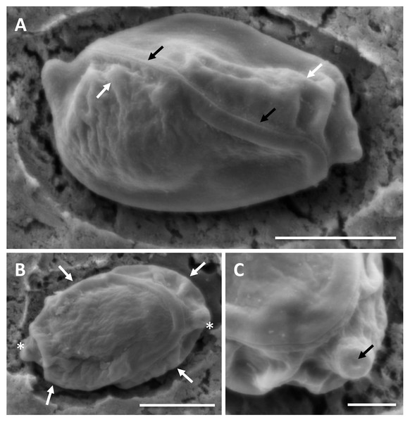 SEM of myxospores of Enteromyxum caesio n. sp.