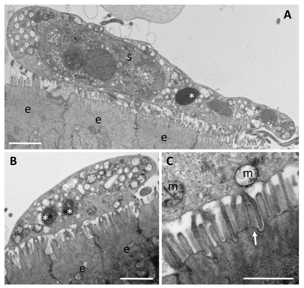Trophozoites of Enteromyxum fugu, attached to the microvilli of the intestinal lining by pseudopodia.