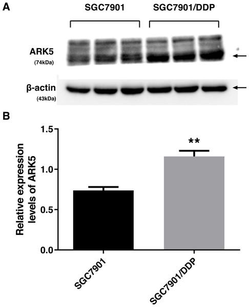 ARK5 expression levels in parental and multidrug-resistant cell lines.