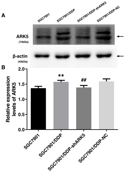 Western blot analysis of the interference efficiency of LV-ARK5-RNAi.