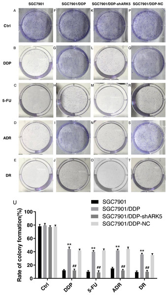 Effects of ARK5 gene Silencing on the colony-forming ability in multidrug-resistant gastric cancer cells.