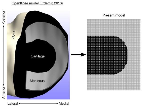 Axial view of medial knee model.
