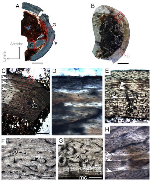 Tibial Histological Class (THC) I of Vespersaurus paranaensis.