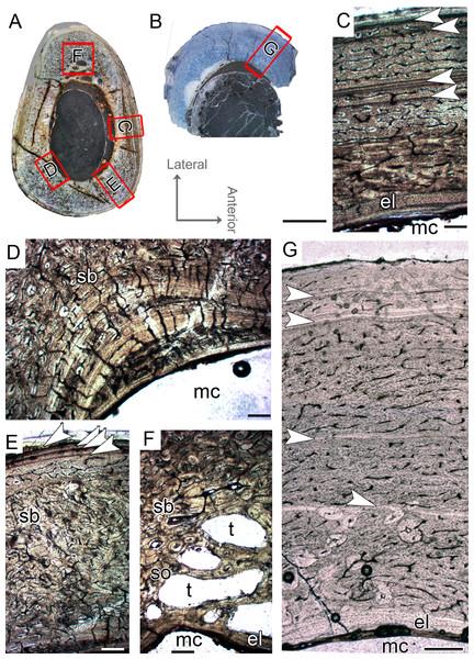 Tibial Histological Class (THC) II of Vespersaurus paranaensis.