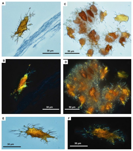 Fossil osteocytes-like from Mongolemys elegans (IGM-90/42).