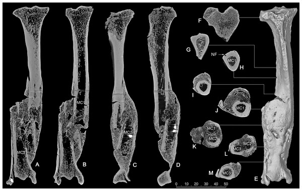 CT scan images of the pathologic right tibia of Canis chihliensis (V18139-20) from SSMZ, Nihewan.