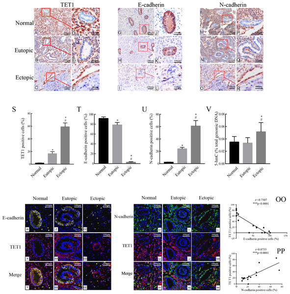 Accompanied with the TET1 upregulation, EMT might occur in endometrial epithelial cells of ovarian endometriosis.