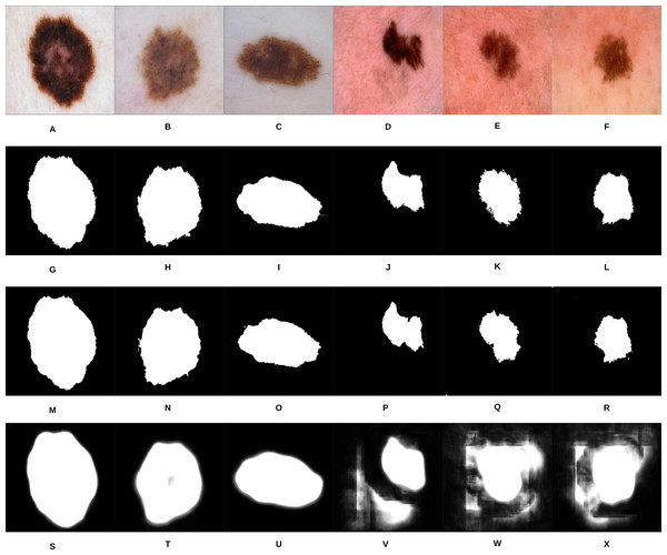 Samples of our proposed segmentation method and U-Net results, where (A–F) represent the original skin lesion images, (G–L) represent the groundtruth images, (M–R) are our method's results, and (S–X) depict the U-Net results.
