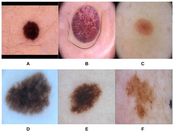 The original images (A–F) corresponding to the skin lesion borders shown in Fig. 11.