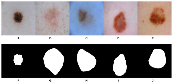 Samples of dermoscopy images (A–E) along with their corresponding groundtruth (F–J) used to train U-Net.