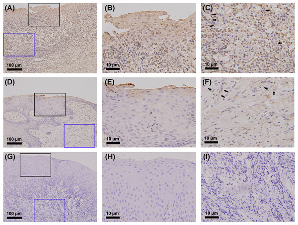 Detection of CYP27B1 in gingiva by immunohistochemistry.