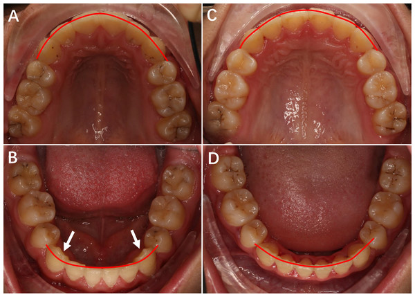 The upper and lower occlusal pictures of patients treated with Roth prescription and Chinese prescription appliance.