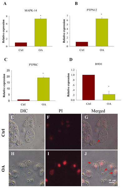 Comparison of expression of potential key genes and Apoptosis test in chondrocytes.