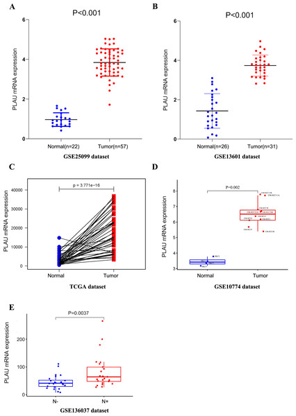 PLAU mRNA is over-expressed in HNSCC.