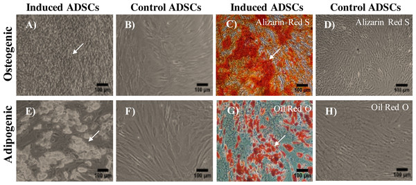 Multilineage differentiation potential of ADSCs.