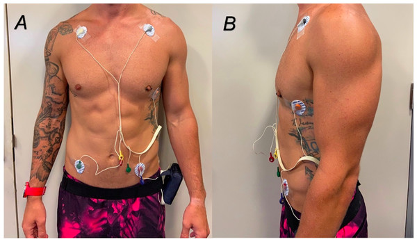 (A and B) Placement of ECG electrodes on participants.